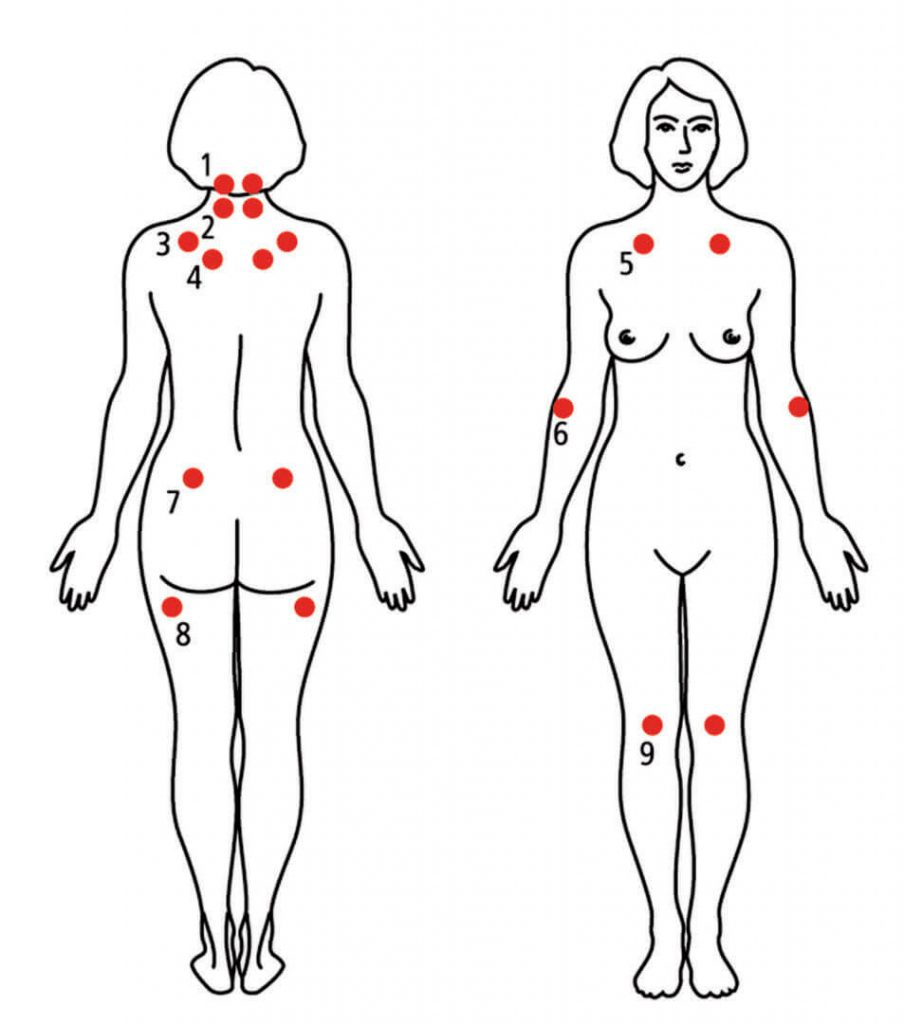 fibromialgia diagnostico
